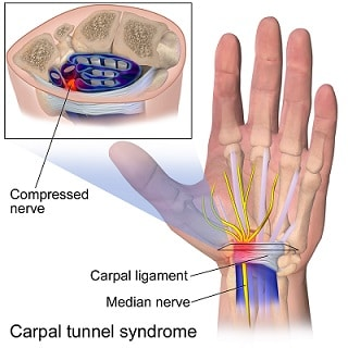 Anatomy of the carpal tunnel, showing the median nerve passing through the tight space it shares with the finger tendons